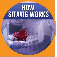 How Sitavig Works